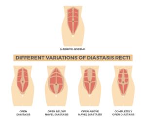 Variations of Diastasis Recti